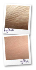 Stretch Marks Prevention And Removal